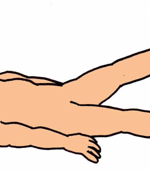 SLR(下肢伸展挙上運動)