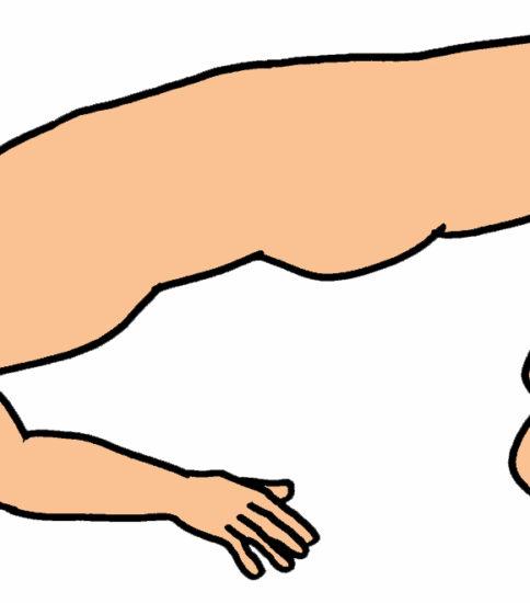 ブリッジ(臀部挙上運動)の変形パターン