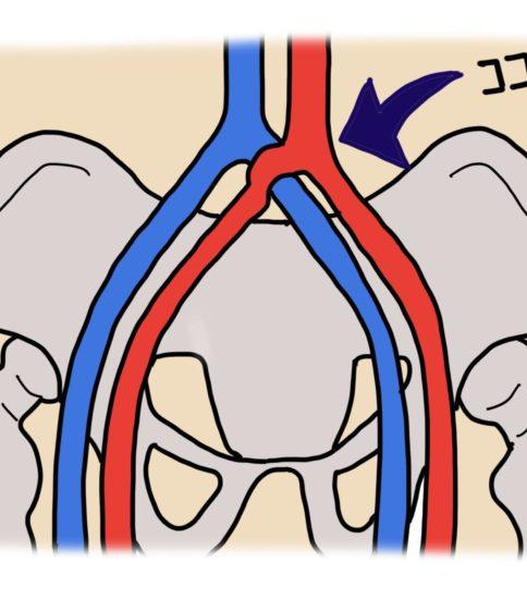 DVTが左下肢に多い理由は?イラストでご説明します
